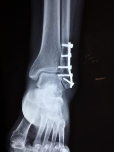 ankle injury with screws through a plate